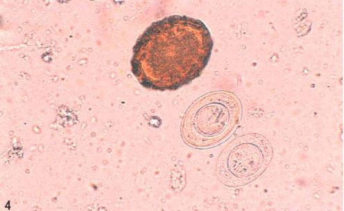 短膜壳绦虫卵和受精蛔虫卵图片